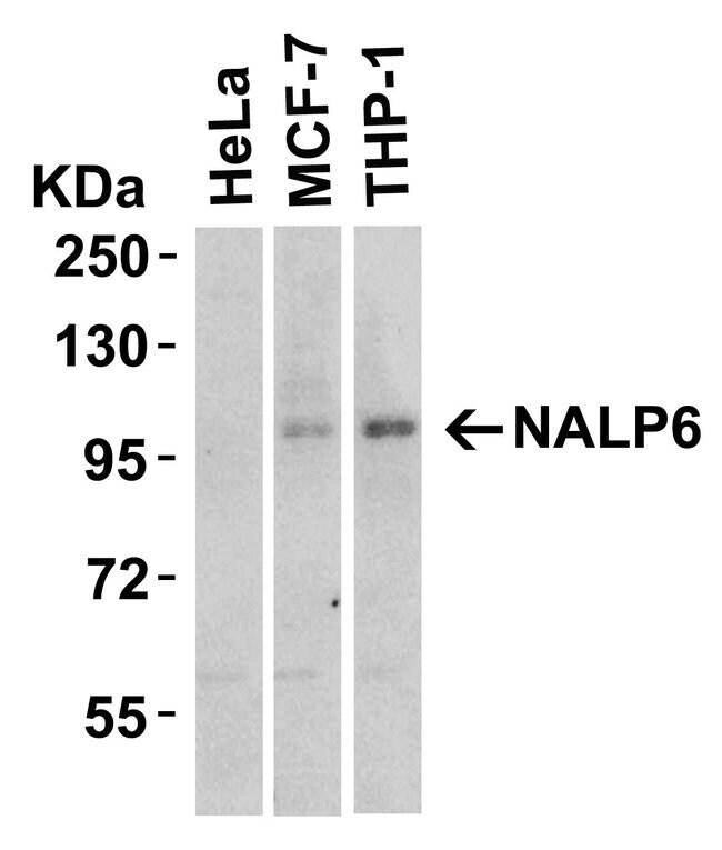 NALP6 Rabbit anti-Human, Mouse, Polyclonal, Invitrogen 100 µg; Unconjugated