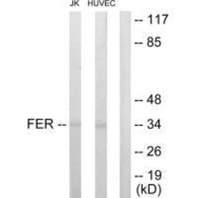 FER Rabbit anti-Human, Mouse, Rat, Polyclonal, Invitrogen 100 µL;