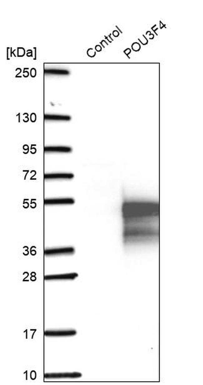 POU3F4 Rabbit anti-Human, Polyclonal, Invitrogen™ 100 μL; Unconjugated Primary Antibodies Pn to Pp