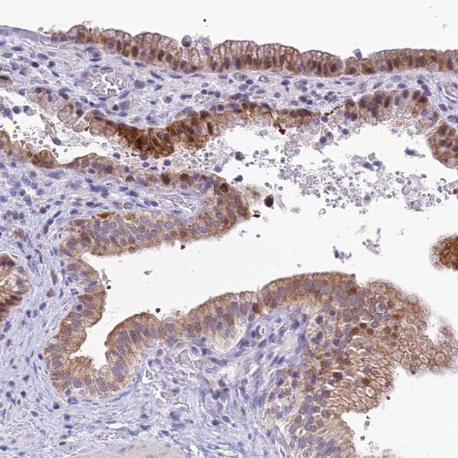 ZMIZ1 Rabbit anti-Human, Polyclonal, Invitrogen 100 µL; Unconjugated