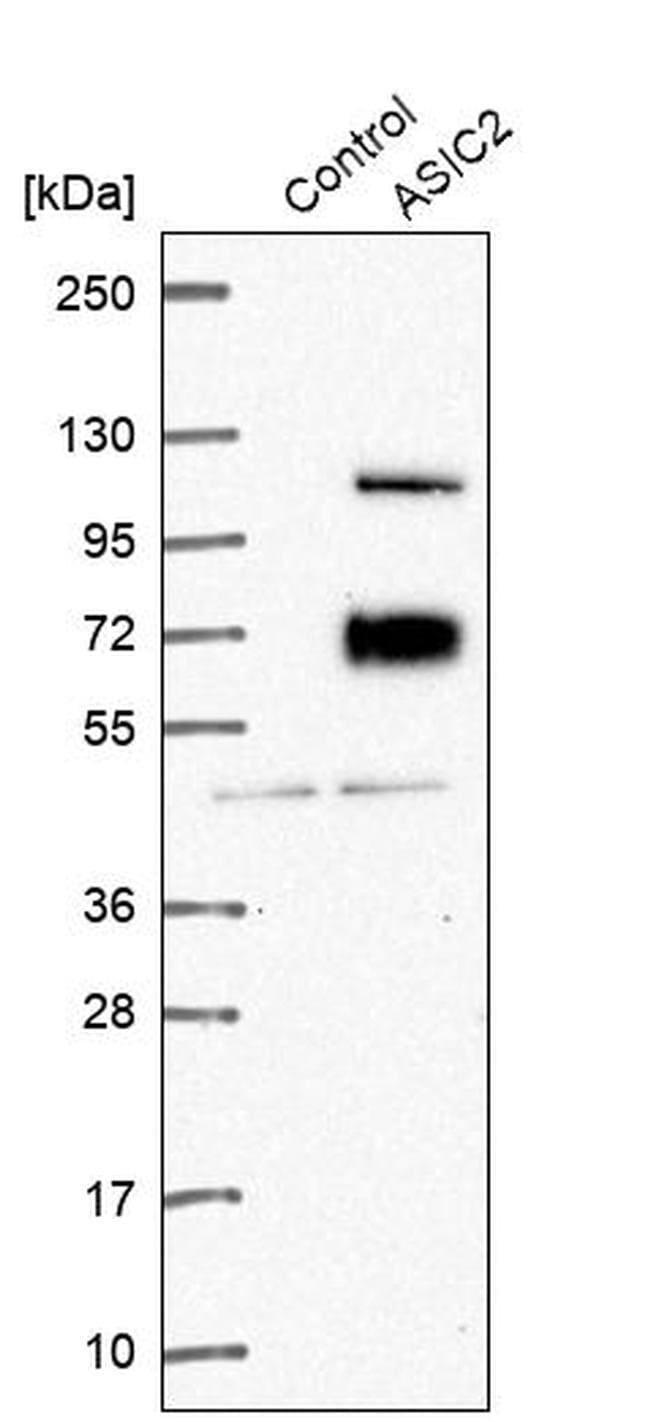 ASIC2 Rabbit anti-Human, Polyclonal, Invitrogen 100 µL; Unconjugated