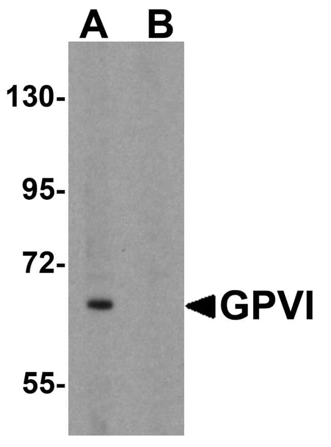 GP6 Rabbit anti-Human, Mouse, Rat, Polyclonal, Invitrogen 100 µg;