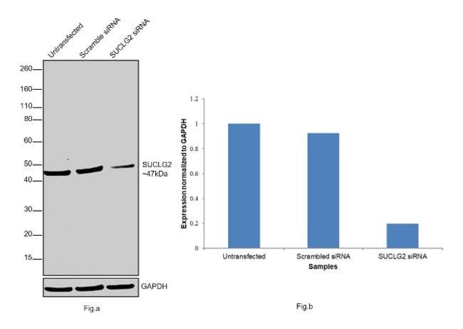 SUCLG2 Rabbit anti-Human, Mouse, Polyclonal, Invitrogen 100 µL; Unconjugated