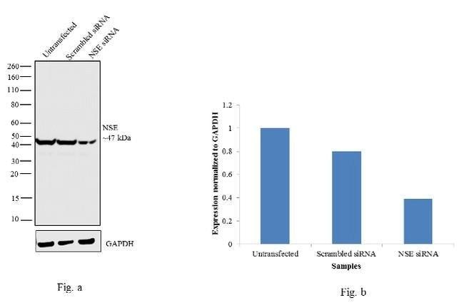 NSE Rabbit anti-Human, Mouse, Polyclonal, Invitrogen 100 µL; Unconjugated