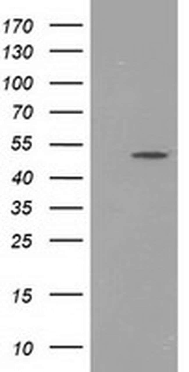 PACSIN3 Mouse anti-Human, Clone: OTI4C5, liquid, TrueMAB  100 µL;