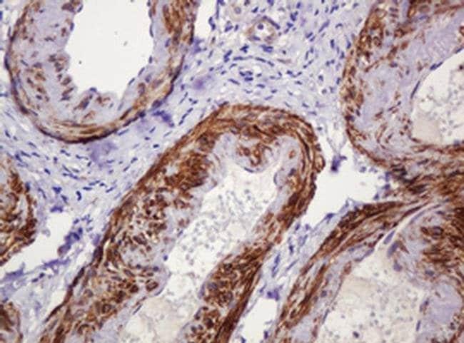 PADI4 Mouse anti-Human, Clone: OTI5C10, liquid, TrueMAB  100 µL; Unconjugated
