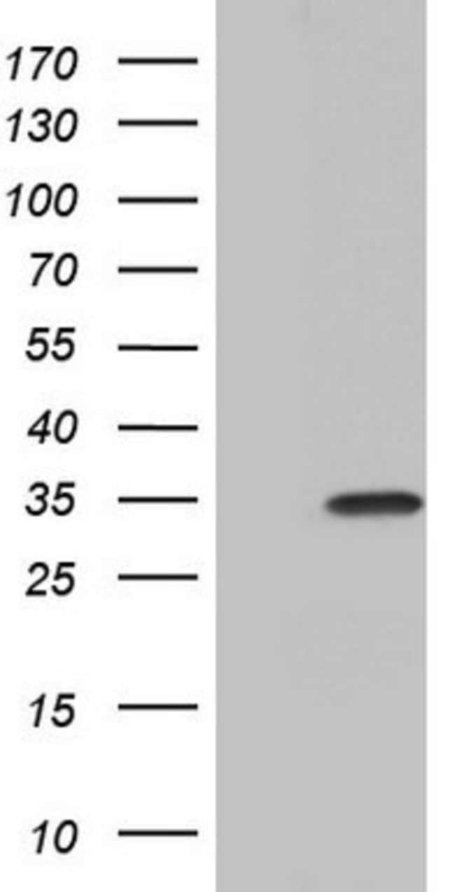 PAFAH1B3 Mouse anti-Human, Clone: OTI2A5, lyophilized, TrueMAB  100 µg;