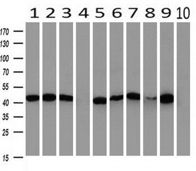 PAICS Mouse anti-Human, Clone: OTI5B6, liquid, TrueMAB  100 µL; Unconjugated