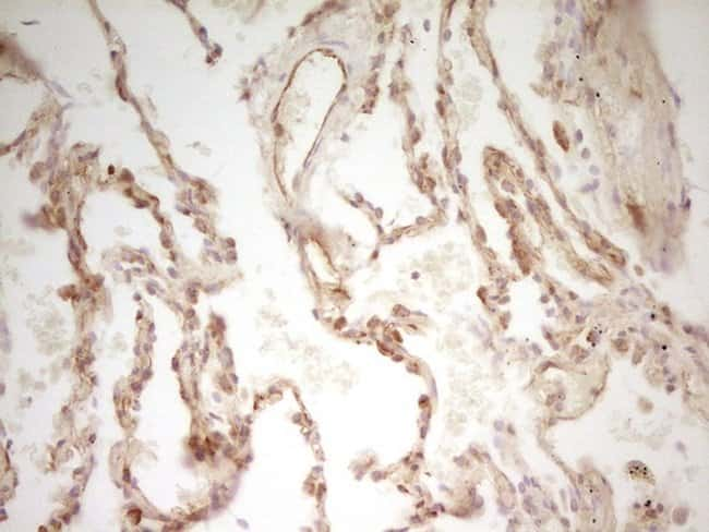 PAK4 Mouse anti-Human, Clone: OTI1C7, lyophilized, TrueMAB  100 µg;