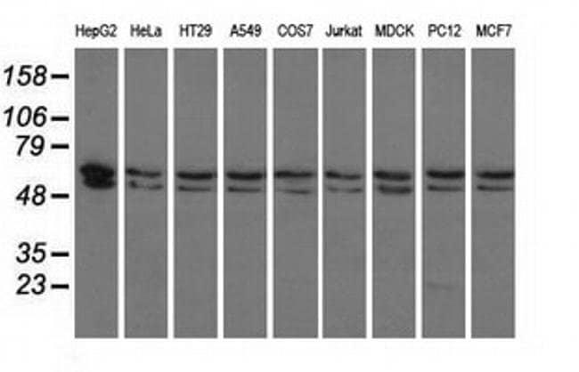 PANK2 Mouse anti-Canine, Human, Rat, Clone: OTI3H9, liquid, TrueMAB  100