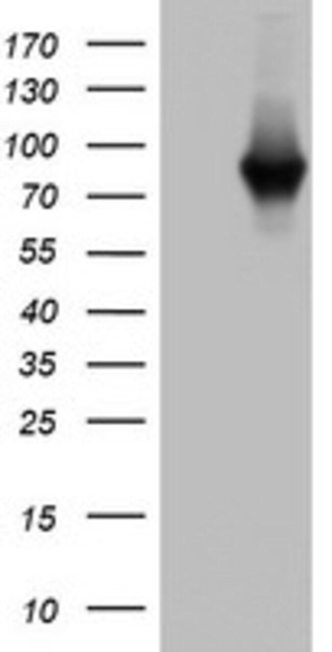 PARN Mouse anti-Human, Clone: OTI3G9, lyophilized, TrueMAB  100 µg;