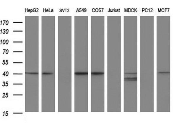 PARVA Mouse anti-Human, Clone: OTI1C10, liquid, TrueMAB  100 µL; Unconjugated