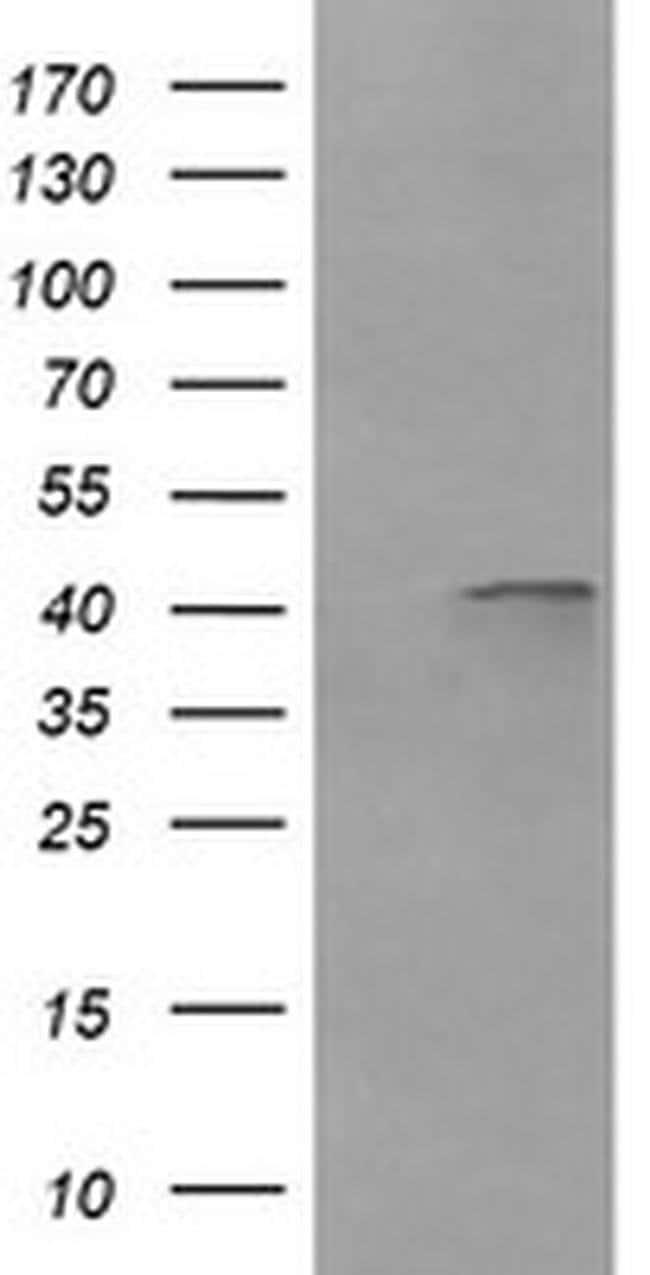 PARVA Mouse anti-Canine, Human, Mouse, Rat, Clone: OTI1C11, liquid, TrueMAB