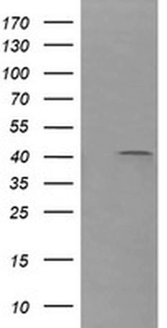 PARVA Mouse anti-Canine, Human, Mouse, Clone: OTI2F10, liquid, TrueMAB