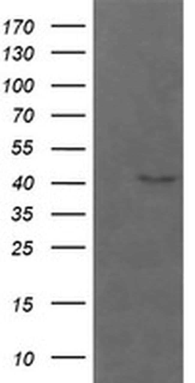 PARVA Mouse anti-Human, Mouse, Rat, Clone: OTI2B11, liquid, TrueMAB  100