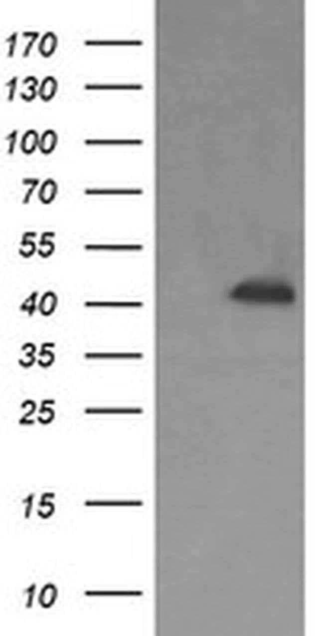 PARVA Mouse anti-Human, Mouse, Rat, Clone: OTI2C3, liquid, TrueMAB  100