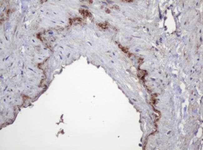 PARVB Mouse anti-Human, Clone: OTI2H1, liquid, TrueMAB  100 µL; Unconjugated