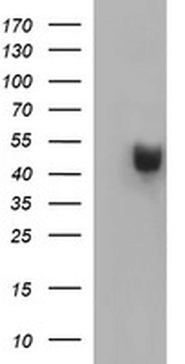 PARVB Mouse anti-Human, Clone: OTI1B9, liquid, TrueMAB  100 µL; Unconjugated