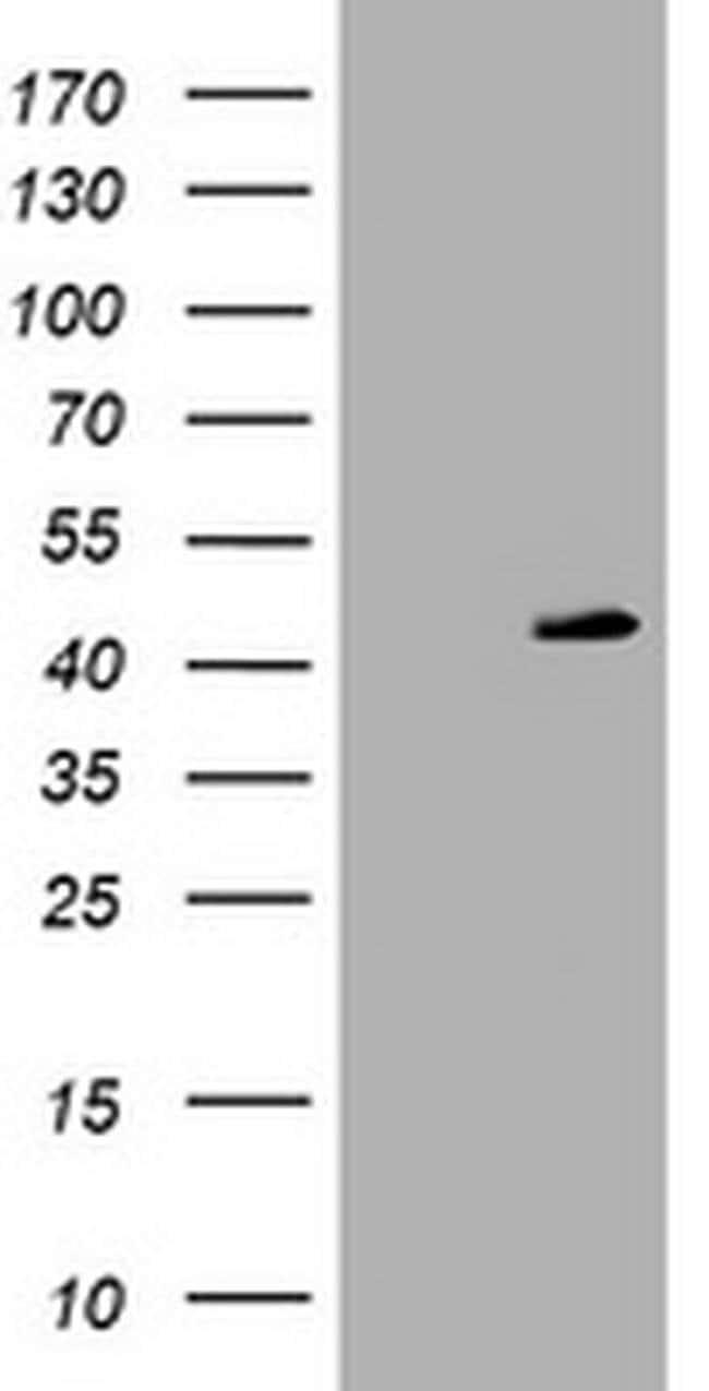 PARVB Mouse anti-Human, Clone: OTI3G1, liquid, TrueMAB  100 µL; Unconjugated