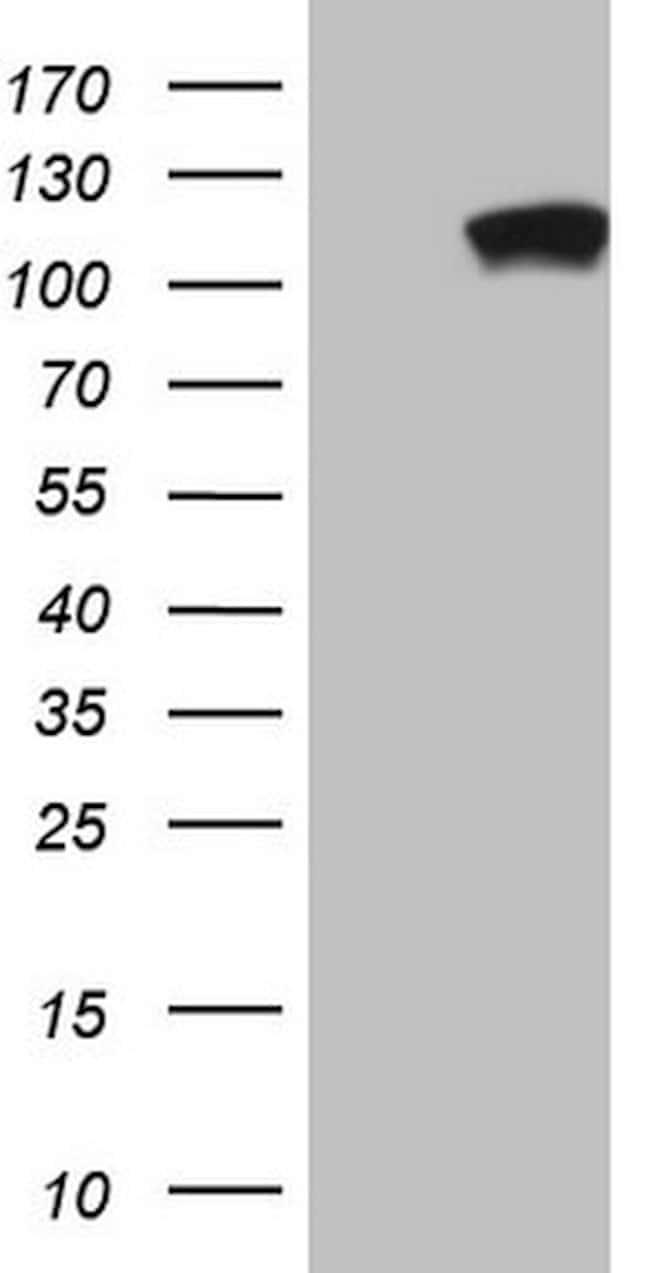PCDHGC5 Mouse anti-Human, Clone: OTI1A6, lyophilized, TrueMAB  100 µg;