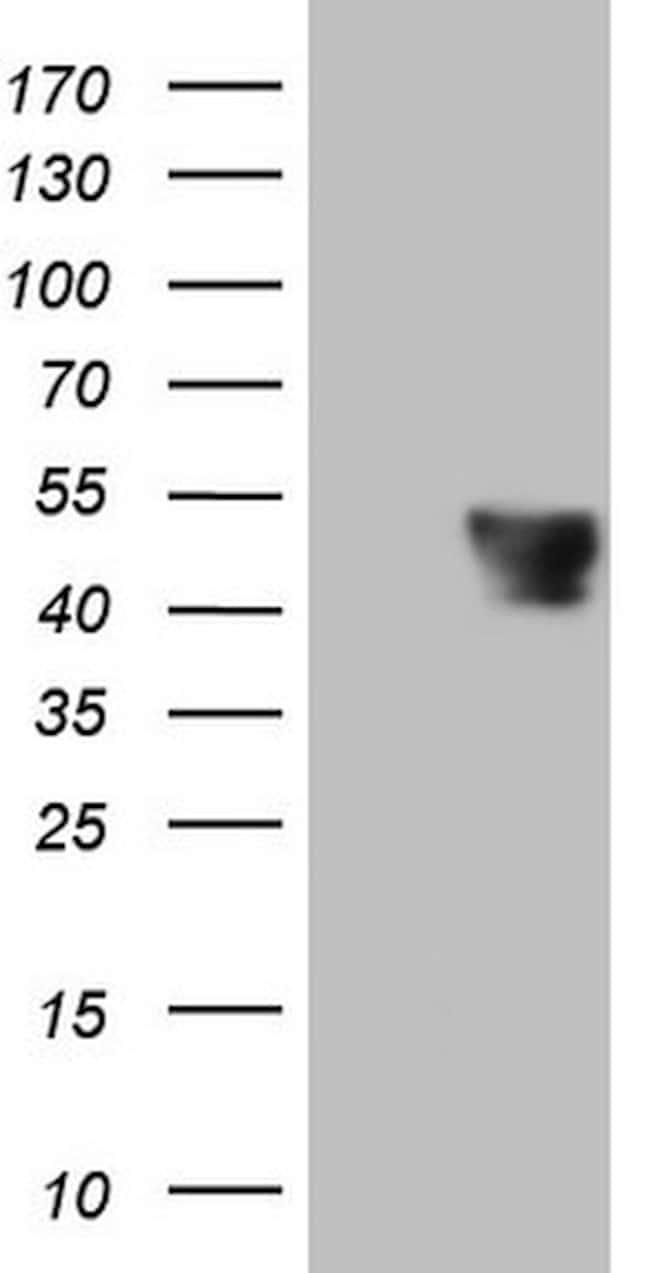 PDCD1 Mouse anti-Human, Mouse, Clone: OTI3A1, lyophilized, TrueMAB  100