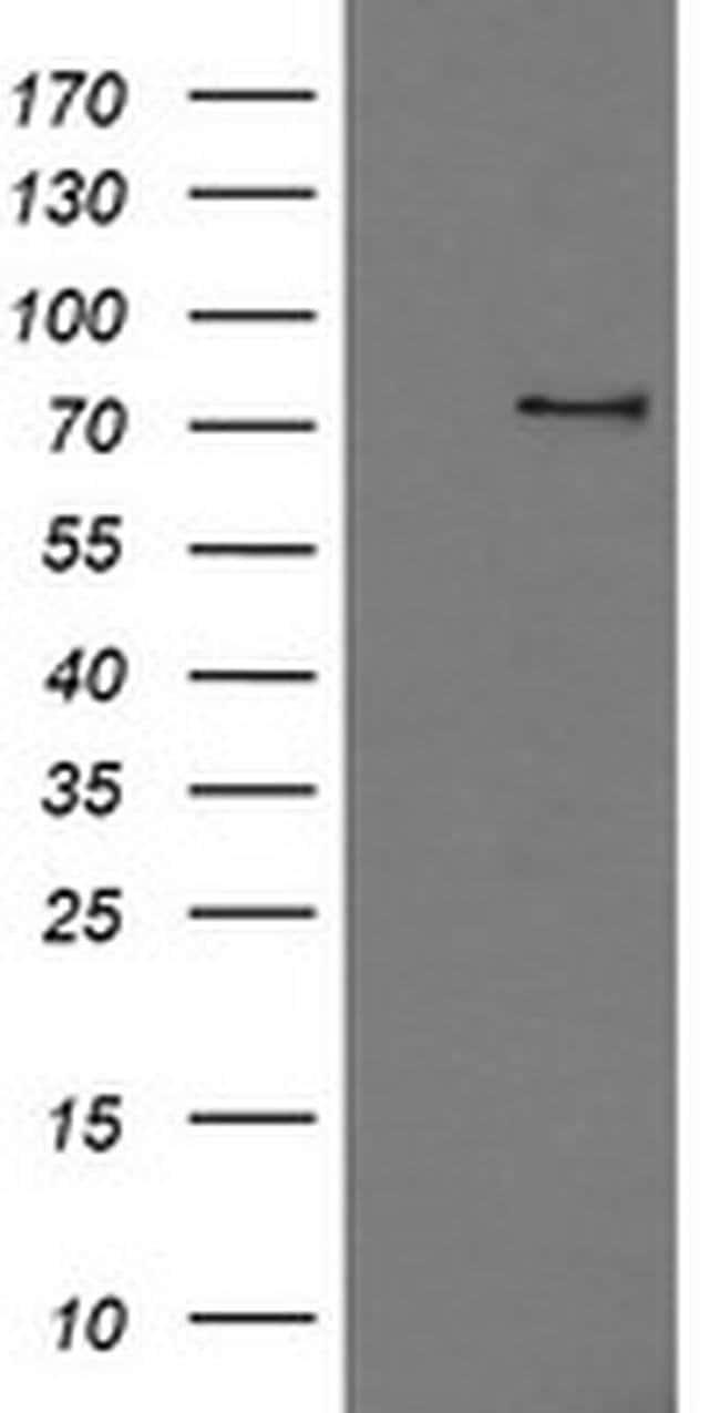 PDE10A Mouse anti-Human, Clone: OTI4A10, liquid, TrueMAB  100 µL;