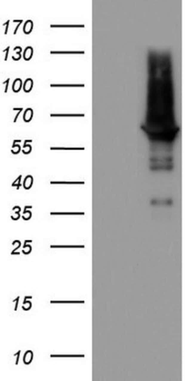 PDE1A Mouse anti-Human, Clone: OTI5C9, lyophilized, TrueMAB  100 µg;