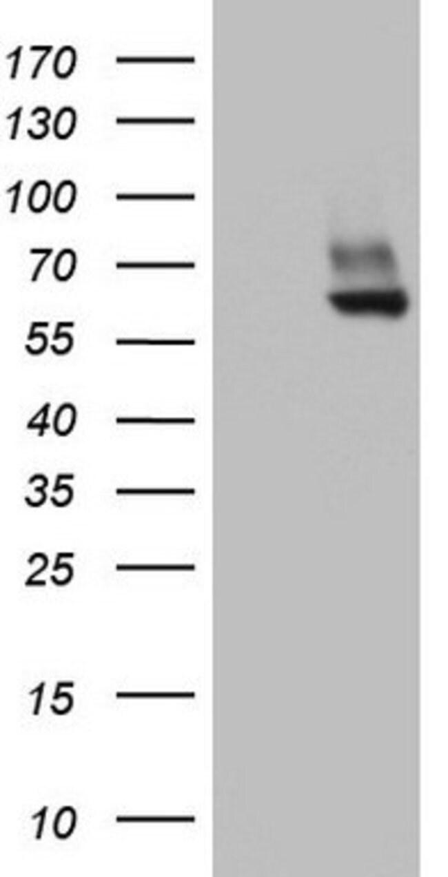 PDE1A Mouse anti-Human, Clone: OTI7D5, lyophilized, TrueMAB  100 µg;