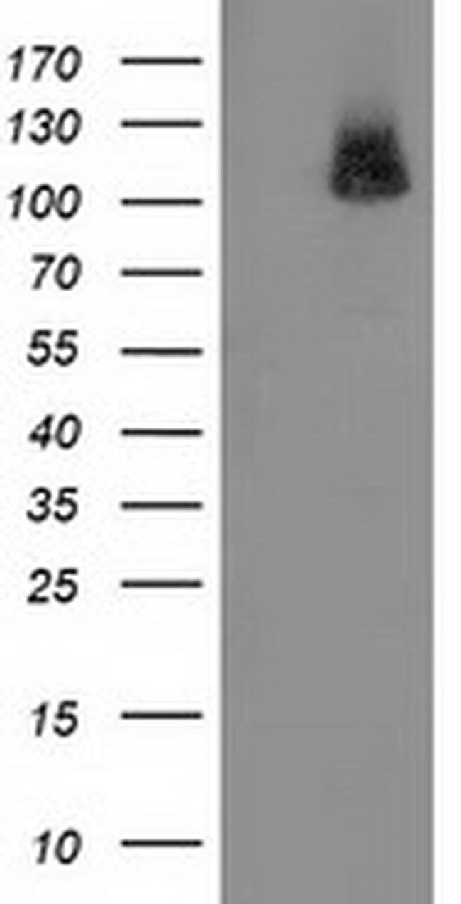 PDE2A Mouse anti-Human, Clone: OTI1G9, liquid, TrueMAB  100 µL; Unconjugated