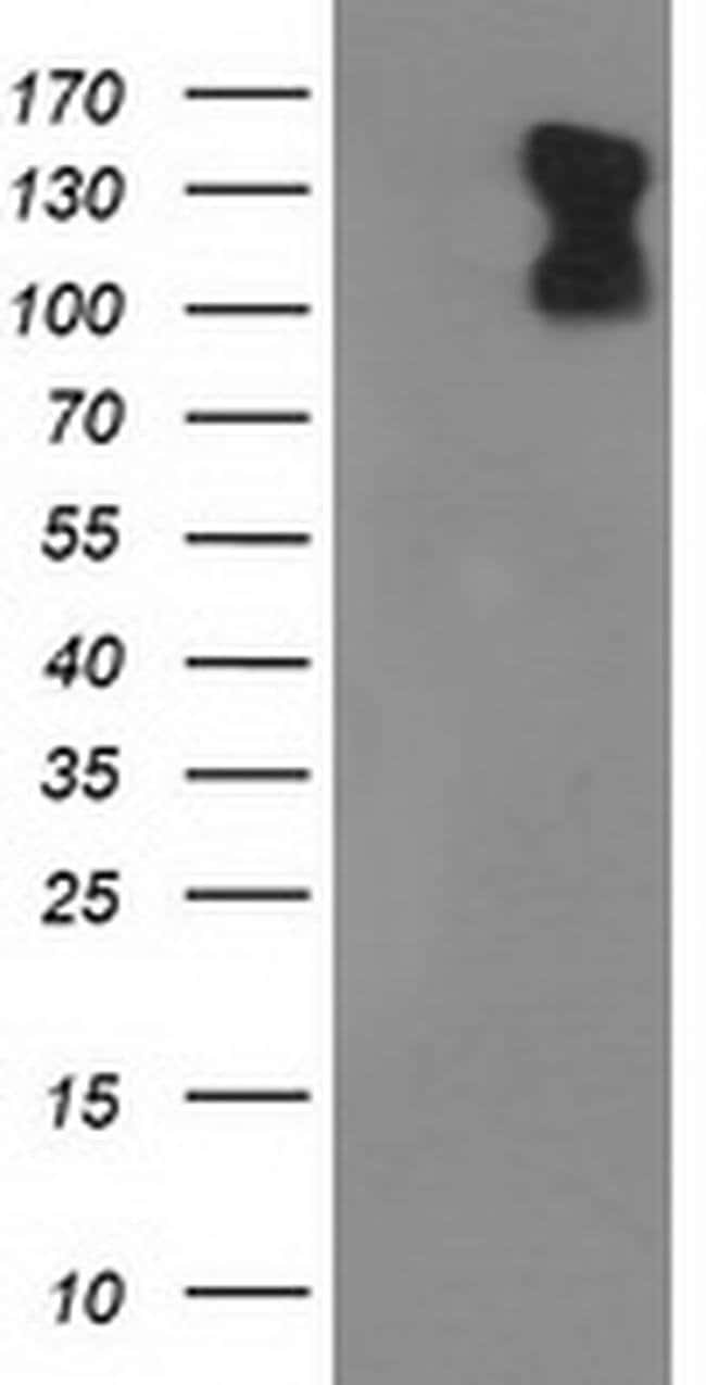 PDE2A Mouse anti-Human, Clone: OTI4H8, liquid, TrueMAB  100 µL; Unconjugated