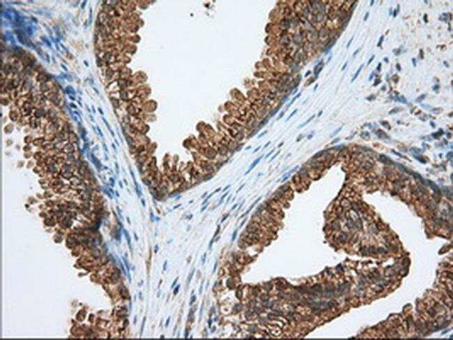 PDE4A Mouse anti-Human, Clone: OTI2G2, liquid, TrueMAB  100 µL; Unconjugated