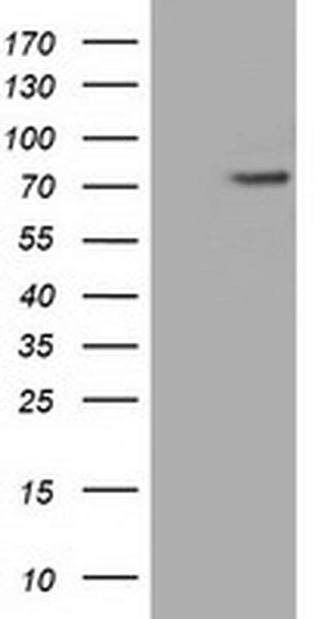 PDE4A Mouse anti-Human, Clone: OTI6D6, liquid, TrueMAB  100 µL; Unconjugated