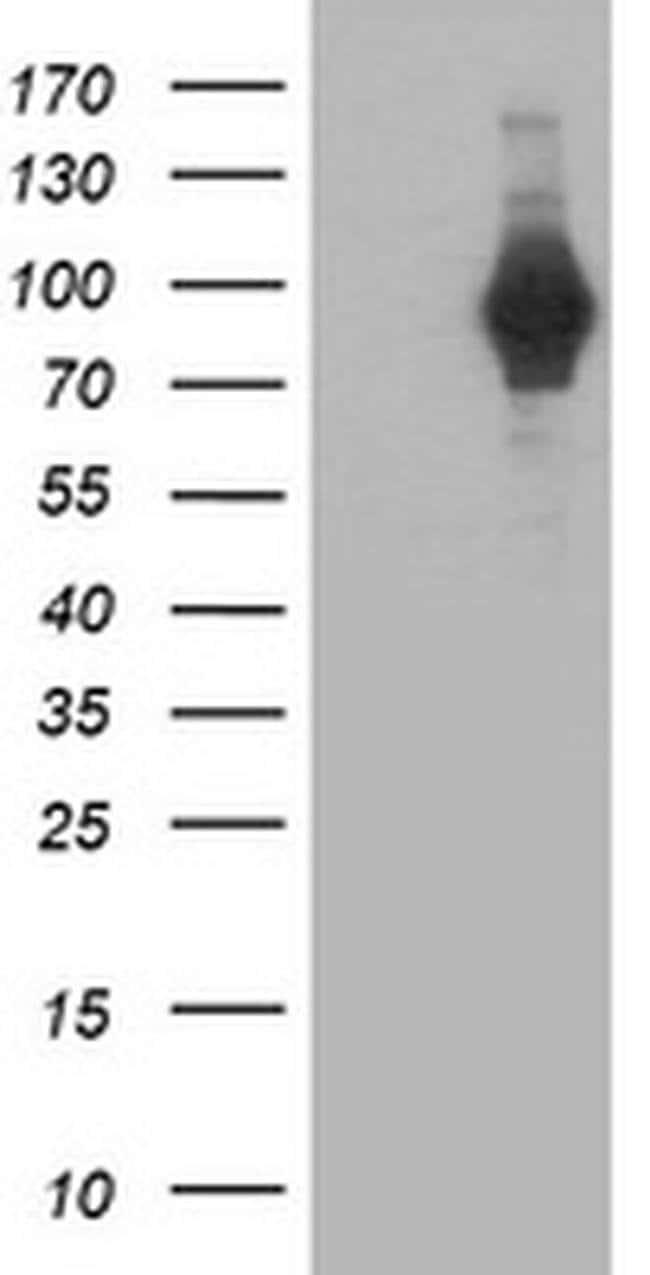 PDE4B Mouse anti-Human, Clone: OTI2B10, liquid, TrueMAB  100 µL; Unconjugated