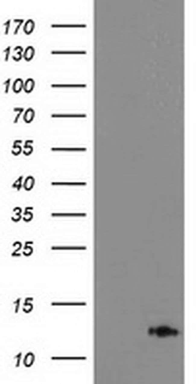 PDE6G Mouse anti-Human, Clone: OTI1H7, liquid, TrueMAB  100 µL; Unconjugated
