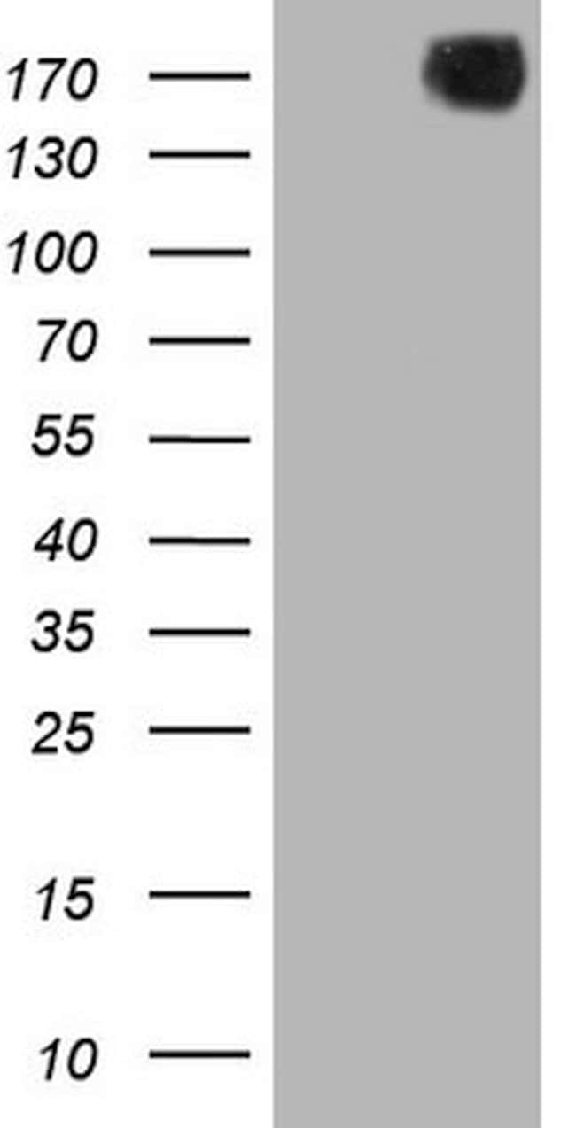 PDGFRA Mouse anti-Human, Clone: OTI1A11, lyophilized, TrueMAB  100 µg;
