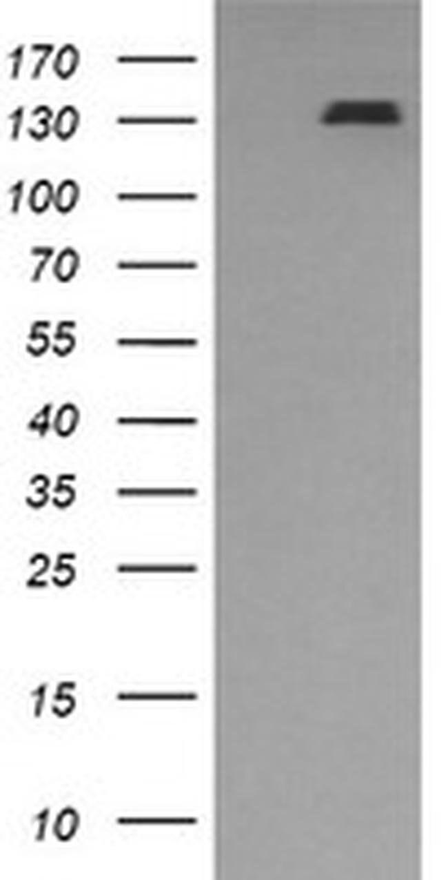 PDGFRB Mouse anti-Human, Clone: OTI1G9, liquid, TrueMAB  100 µL; Unconjugated