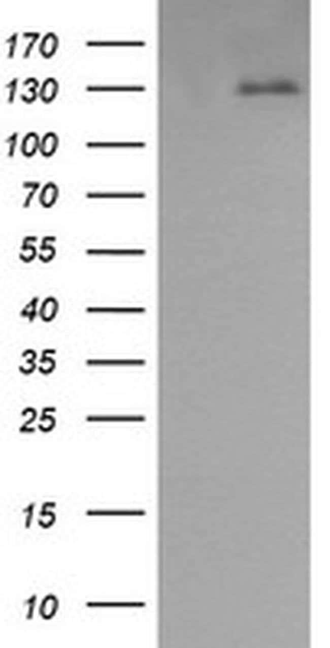 PDGFRB Mouse anti-Human, Clone: OTI3B5, liquid, TrueMAB  100 µL; Unconjugated