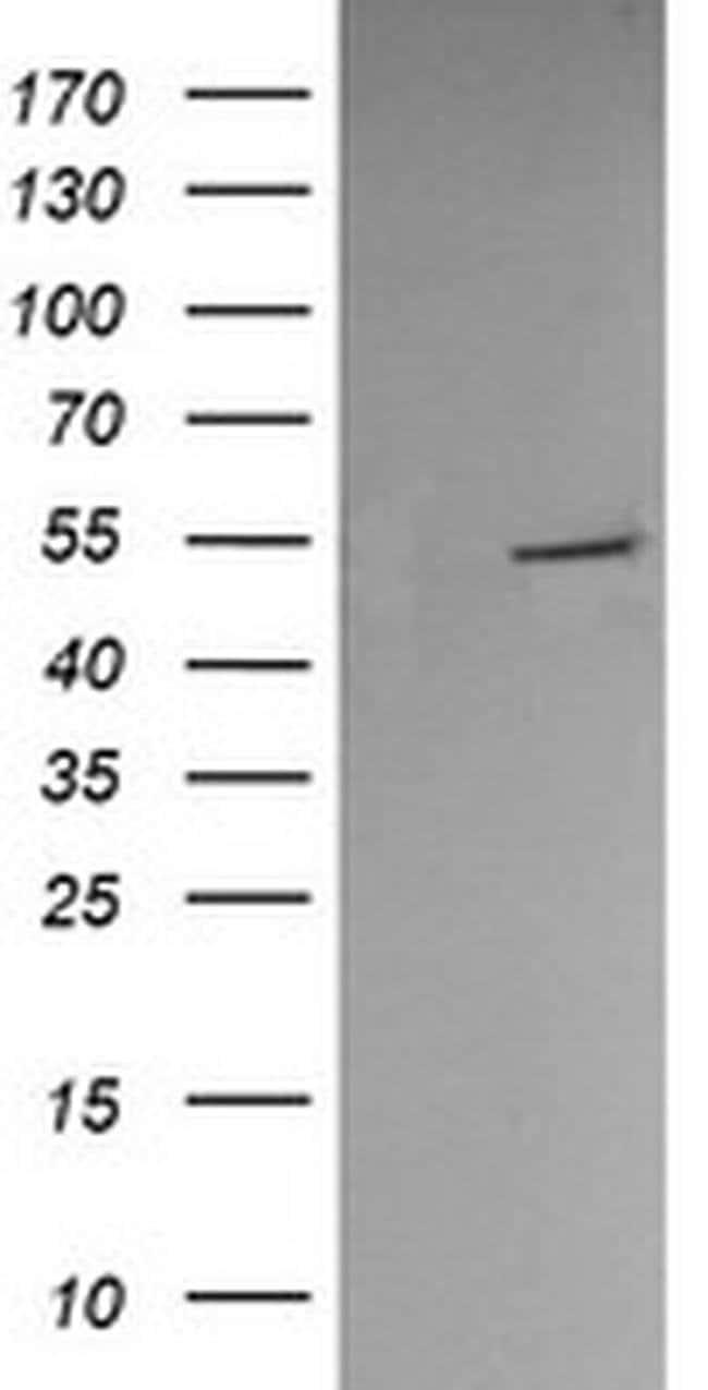 PDIA3 Mouse anti-Human, Clone: OTI3D2, liquid, TrueMAB  100 µL; Unconjugated