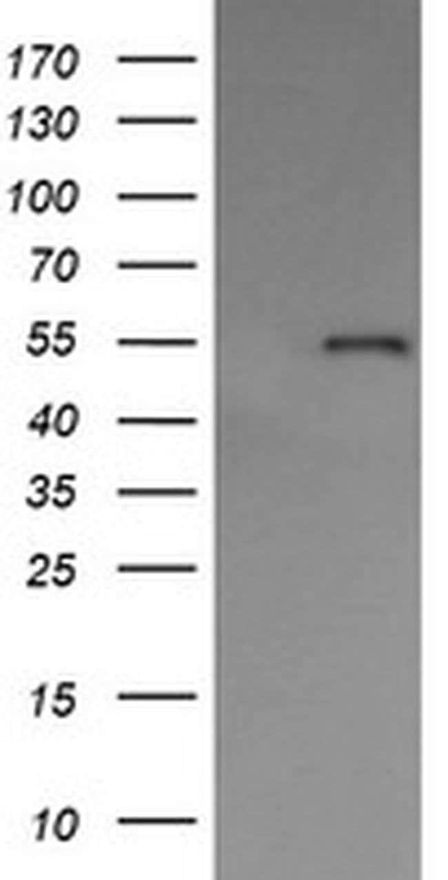 PDIA3 Mouse anti-Human, Clone: OTI3E1, liquid, TrueMAB  100 µL; Unconjugated