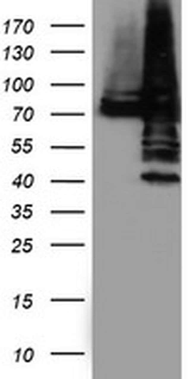 PDIA4 Mouse anti-Human, Clone: OTI2E11, liquid, TrueMAB  100 µL; Unconjugated
