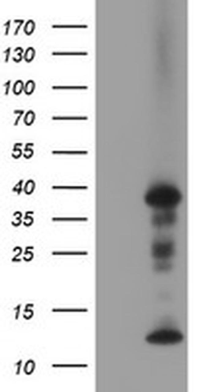 PDLIM2 Mouse anti-Canine, Human, Clone: OTI10C4, liquid, TrueMAB  100 µL;