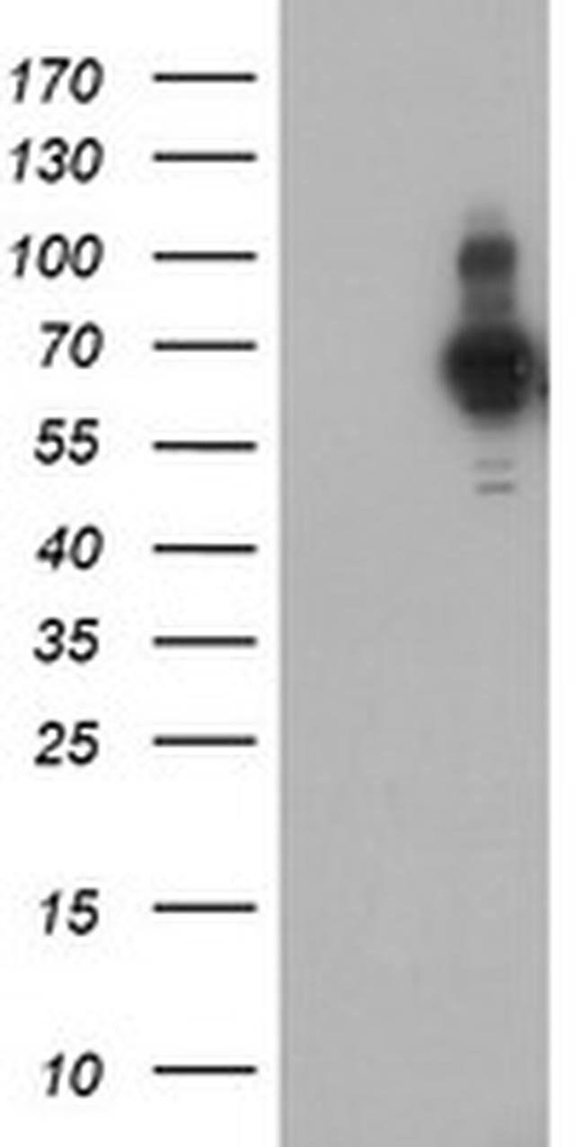 PDLIM5 Mouse anti-Human, Clone: OTI1C11, liquid, TrueMAB  100 µL;