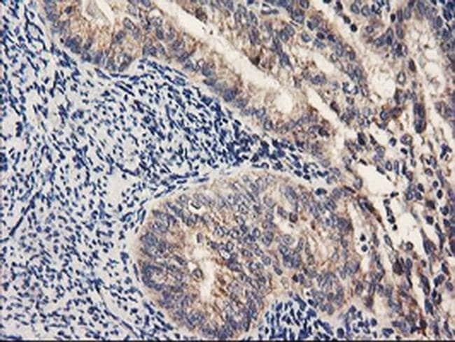 PDSS2 Mouse anti-Human, Clone: OTI1D12, liquid, TrueMAB  100 µL; Unconjugated