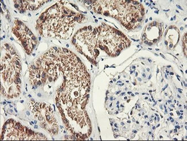 PDSS2 Mouse anti-Human, Clone: OTI2A3, liquid, TrueMAB  100 µL; Unconjugated