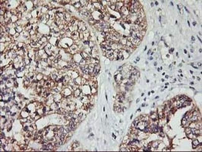 PDSS2 Mouse anti-Human, Clone: OTI4F9, liquid, TrueMAB  100 µL; Unconjugated
