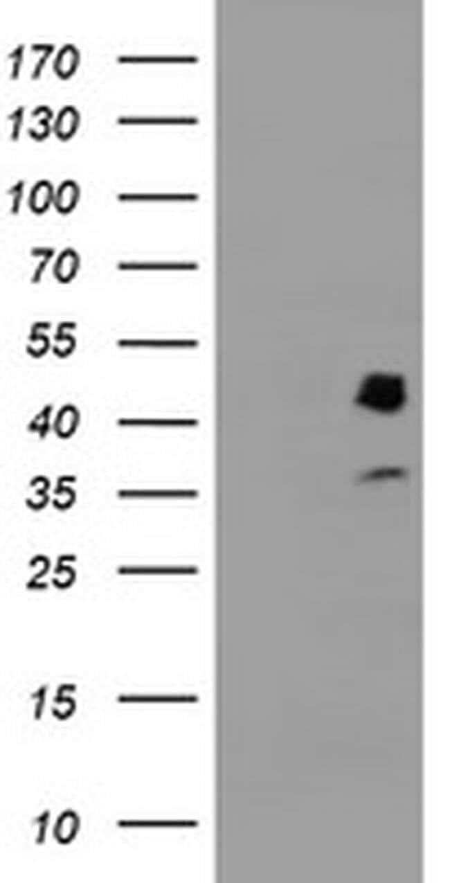 PDSS2 Mouse anti-Human, Clone: OTI1D2, liquid, TrueMAB  100 µL; Unconjugated