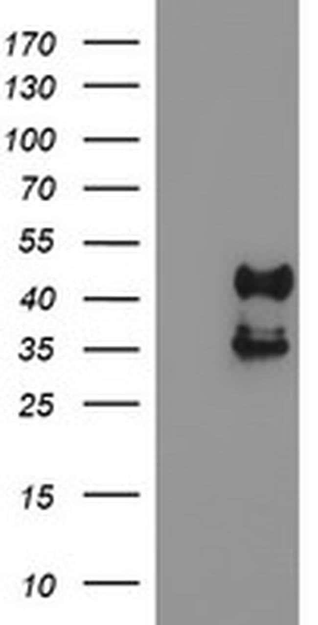 PDSS2 Mouse anti-Human, Clone: OTI1E9, liquid, TrueMAB  100 µL; Unconjugated