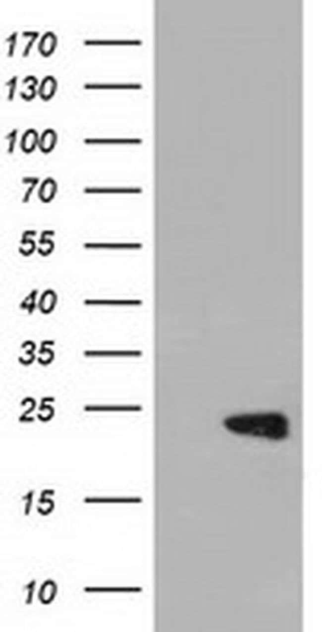 PEBP1 Mouse anti-Human, Clone: OTI2D4, liquid, TrueMAB  100 µL; Unconjugated