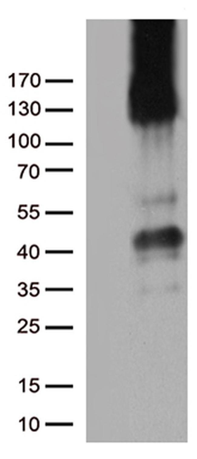 PECAM1 Mouse anti-Human, Clone: OTI2B5, liquid, TrueMAB  100 µL; Unconjugated