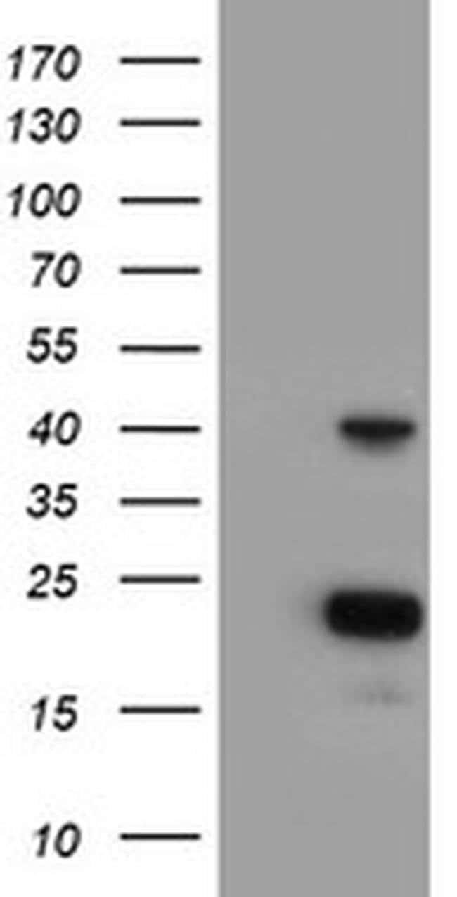 PECI Mouse anti-Human, Clone: OTI2H10, liquid, TrueMAB  100 µL; Unconjugated